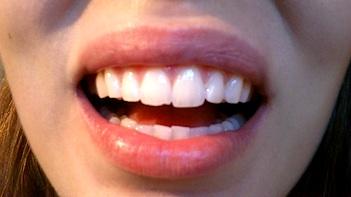 tandblekning led ljus